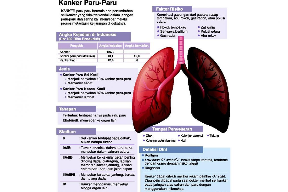 Penanganan Kanker Paru-Paru saat Pandemi